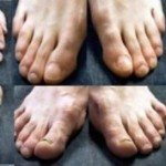 Poco glamour: Los horribles pies de los futbolistas top. Fotos