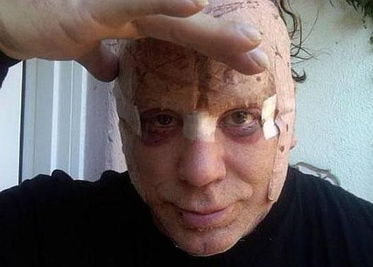 Impresionantes fotos de Mickey Rourke tras una cirugía estetica