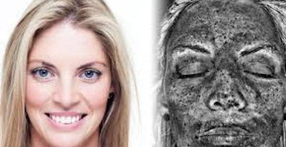 Mirá los daños en la piel luego de 14 años de cama solar