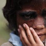 Foto: Así quedó la niña que tenía el rostro cubierto de vello tras la operación