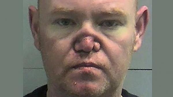 Se quedó sin nariz por culpa de la cocaína. Foto