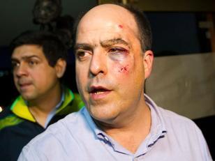 Venezuela: Diputados opositores fueron agredidos nuevamente en sesión del Parlamento