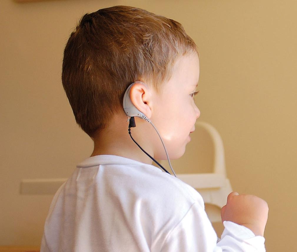 La cartera sanitaria va por el 35 implante coclear