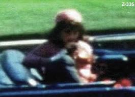 Impactante video que muestra toda la secuencia del asesinato de Kennedy