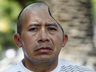 Lo indemnizan con US$58 millones tras perder parte de su cabeza en una pelea