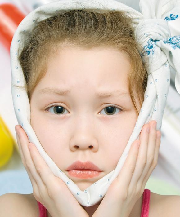PAPERAS: Sintomas , tratamiento y prevencion