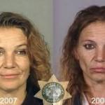 Drogas: Impresionante fotos del antes y el después