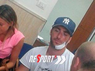 Higuaín se cortó en el rostro al resbalarse