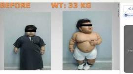 Operan a niño obeso de dos años para reducirle el estómago