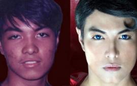 Se hace 20 cirugías en 16 años para ser igual a Superman