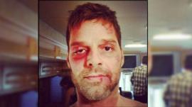 La foto de Ricky Martin  totalmente desfigurado