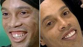 La nueva sonrisa de Ronaldinho