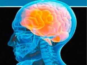 El accidente cerebrovascular afecta cada vez más persinas de entre los 20 y los 64 años