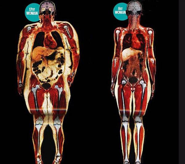 Mirá el daño que causa la gordura a nuestros órganos, huesos y músculos