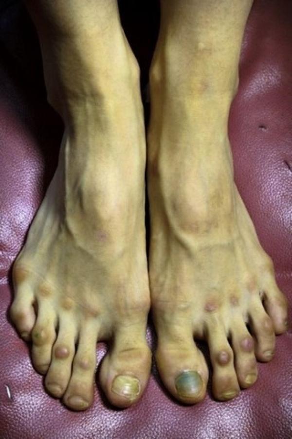 Así son los pies de una bailarina profesional del Ballet