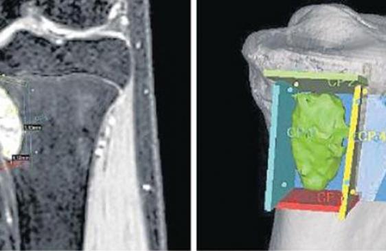 Investigadores argentinos desarrollan un simulador para cirugías de cáncer óseo
