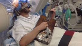 Video: Toca la guitarra mientras la hacen una cirugía cerebral
