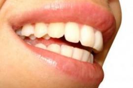 Alimentos que blanquean los dientes naturalmente