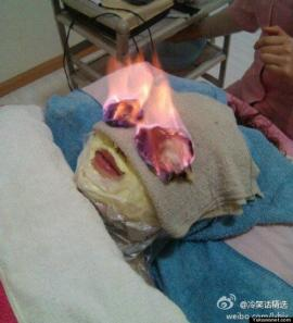 Lo último en belleza: te prenden fuego las arrugas