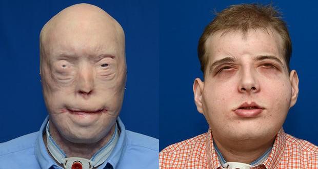 Realizaron un complejo trasplante de rostro