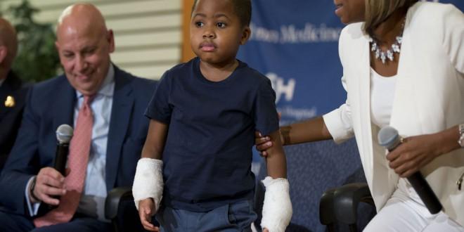 Un niño de 8 años recibió un doble trasplante de mano