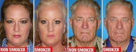 Fotos reveladoras: así se ve un gemelo que fuma y otro que no