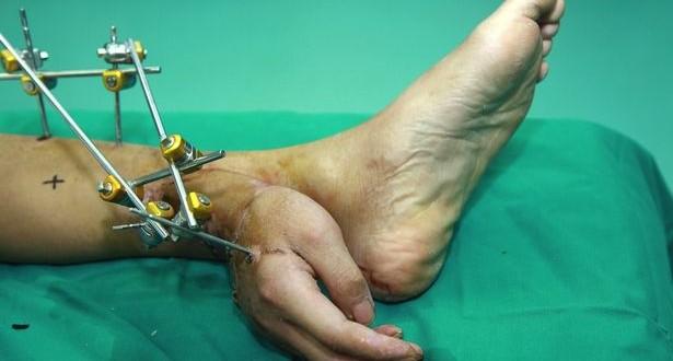 Le injertan una mano en la pierna 1