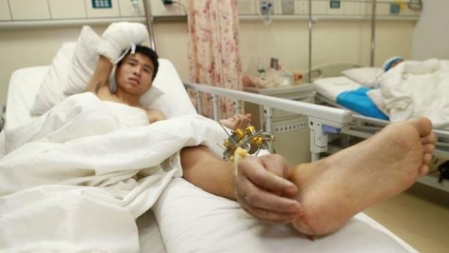 Le injertan una mano en la pierna