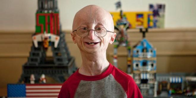 Murió Sam Berns, el adolescente con el cuerpo de un anciano