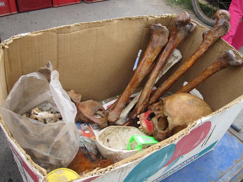 Tráfico ilegal de huesos humanos en Argentina