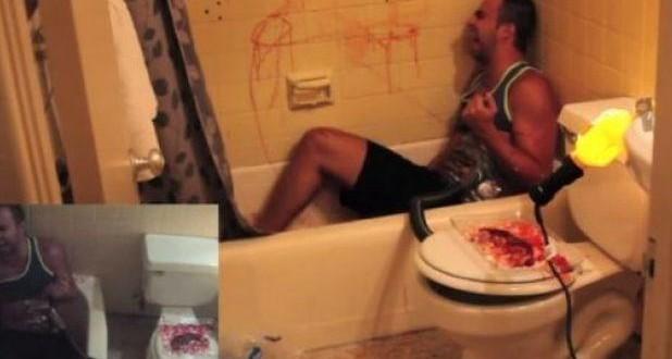Video Furor en las redes: Le hicieron creer que le robaron un riñón.
