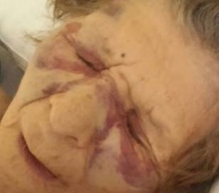 Una anciana fue salvajemente golpeada por una pareja de delincuentes