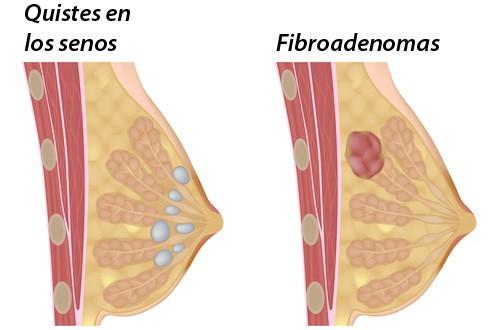 Cómo evitar los quistes en los senos