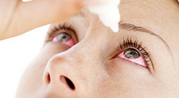 Cómo calmar la irritación de los ojos