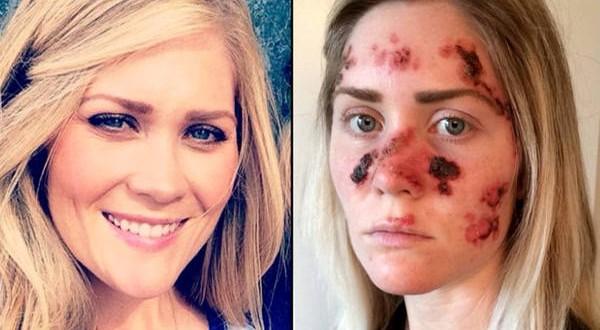 Tiene cáncer de piel por usar cama solar y lo mostró con una selfie impactante