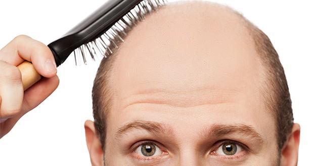Verdades y mentiras sobre la caída del cabello