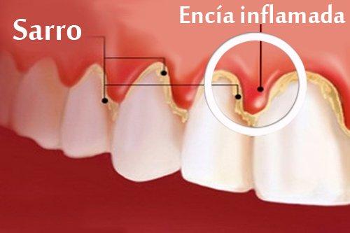 Como tratar y eliminar la gingivitis
