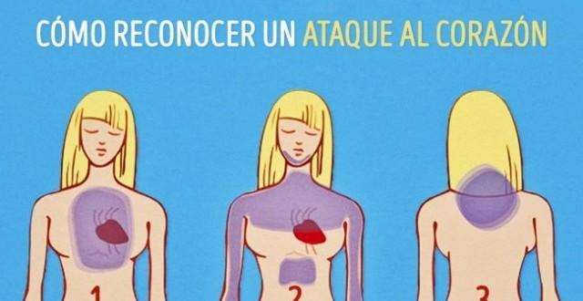 Como reconocer un ataque al corazón antes de que ocurra
