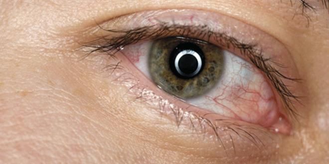 Alertan por un tipo de conjuntivitis que puede durar hasta un mes y dejar secuelas