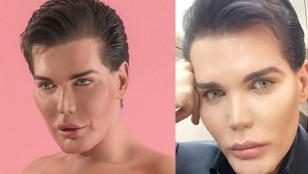 Gastó 500 mil euros en parecerse a Ken, el novio de Barbie
