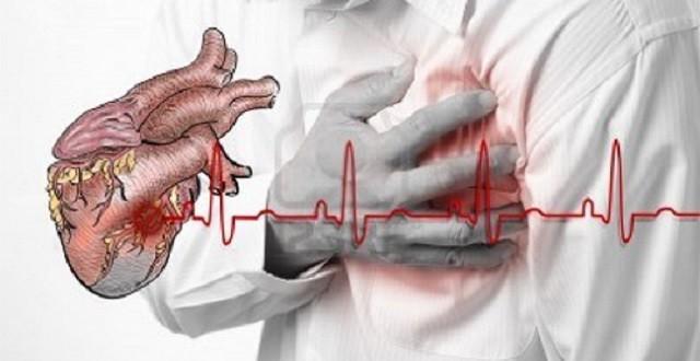 Señales que da el cuerpo un mes antes de un infarto