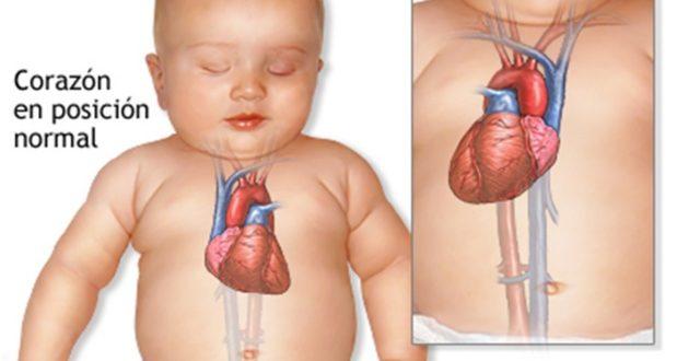 Nació bebé con el corazón hacia la derecha del tórax