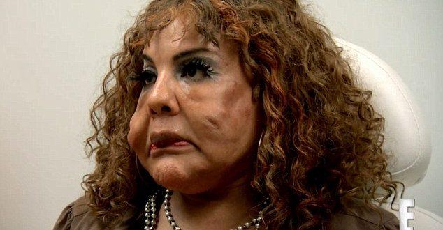 Se inyectó cemento en la cara y mira como quedó