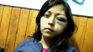 Un hombre desfiguró a golpes a su ex pareja