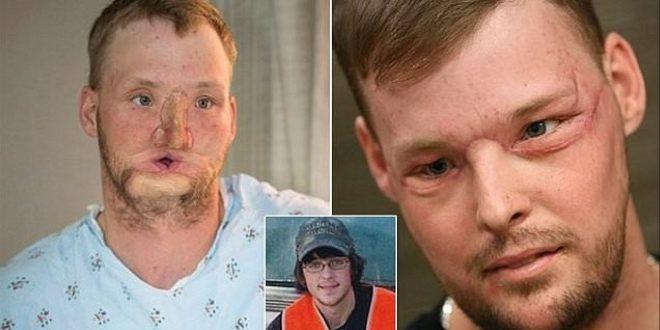 Se desfiguro al intentarse suicidar y los medicos le trasplantaron la cara de otro suicida