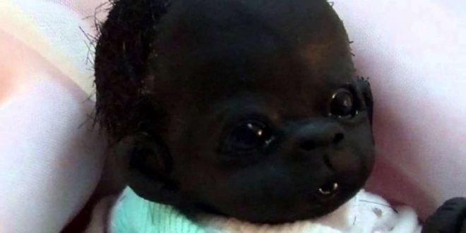 """El bebé """"más negro del mundo"""""""
