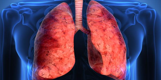 Nuevos tratamientos para la fibrosis pulmonar que reducen a la mitad su progresión