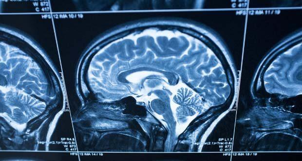 Alerta por un parásito letal que ataca el cerebro humano