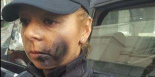 Caso Maldonado: así le pintaron la cara a una mujer policía que custodiaba la morgue judicial