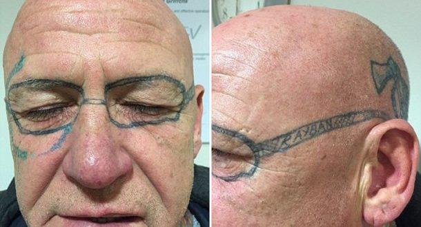 Se fue de fiesta y despertó con un tatuaje en la cara